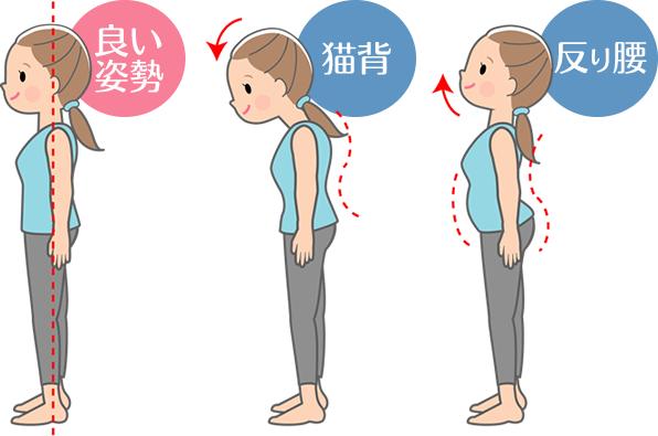 良い姿勢・猫背・反り腰のイラスト
